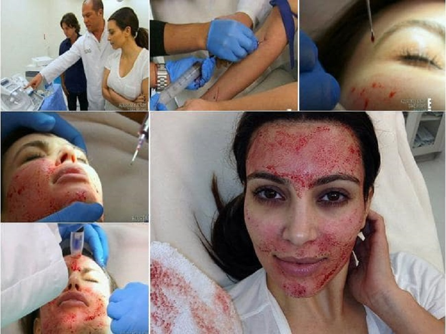 tratamentos cosméticos bizarros