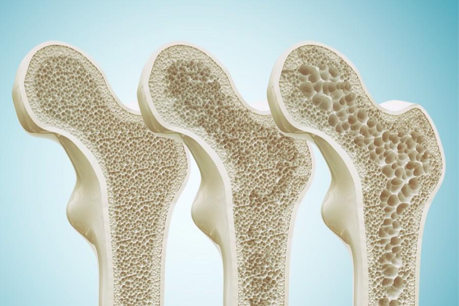 osteoporose imagem destacada